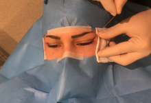 Badem Göz Estetiği Nedir ve Nasıl Yapılır?